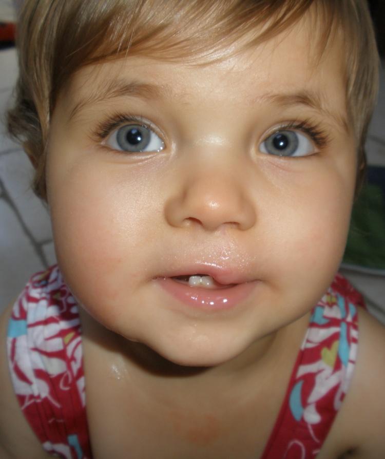 Emily 3 Aged 1