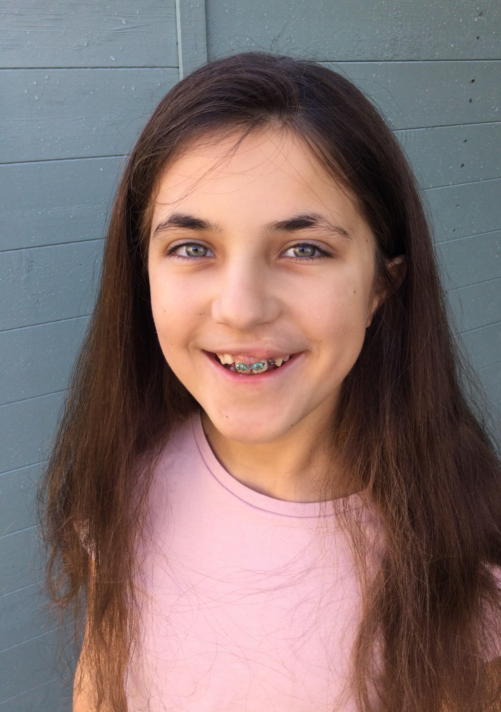 Emily 7 Aged 10
