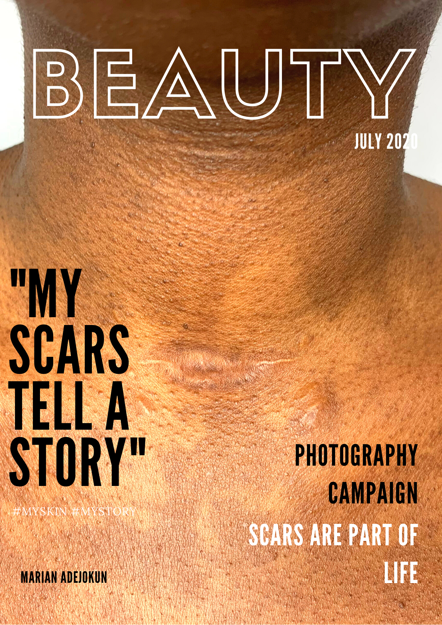 My Scars Tell A Story Cover Image